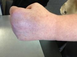 personal injury damage